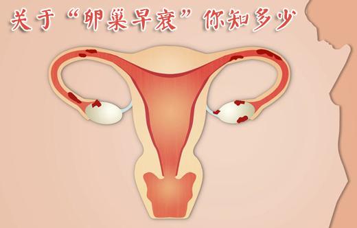 卵巢早衰_卵巢早衰怎么办_卵巢早衰的症状_卵巢早衰怎么治疗